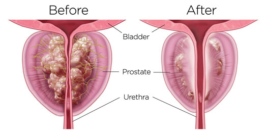 Rezum Prostate BPH Before and After