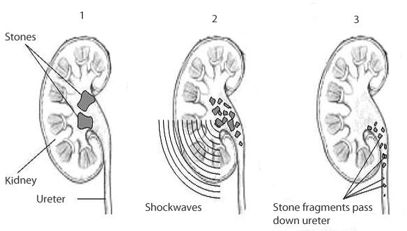 Shockwave Treatment Kidney Stones